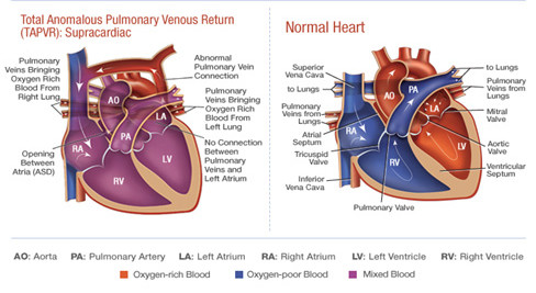 Comparison of a normal heart (right) and one suffering from Total Pulmonary Venous Anomalous Drainage.
