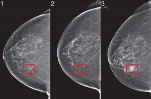 Mammography-AI