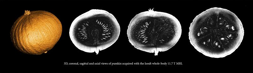 MRI scan of a pumpkin. The most powerful MRI in the world for observing the human body, and more particularly the brain, has delivered its first images near Paris of a pumpkinAFP PHOTO / Commissariat à l'énergie atomique et aux énergies alternatives