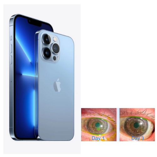 Doctor uses Apple iPhone 13 Pro's camera to monitor eyes of cornea